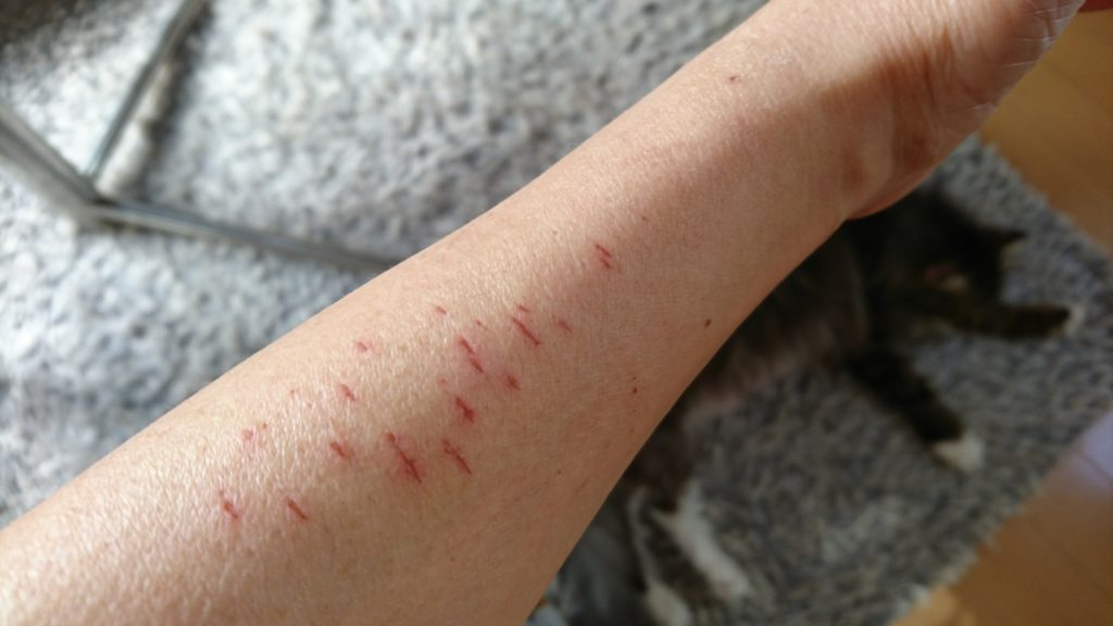 腕には無数の花ちゃんの引っ掻き傷。寝坊すけも一発で飛び起きます